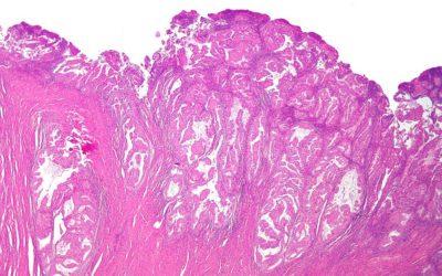 1024px-Endometrioid_endometrial_adenocarcinoma_low_mag
