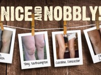 nobbly_knees_images_09.05.13